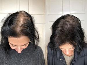 خرید روغن مو